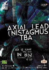 Nistagmus& Axial Lead
