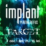Concert Implant Pentru Refuz si TARG3T in Timisoara